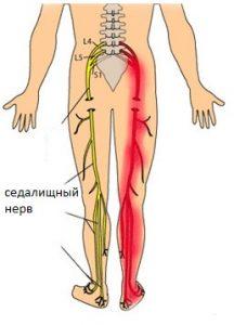 Трансфер фактор лечение артроза