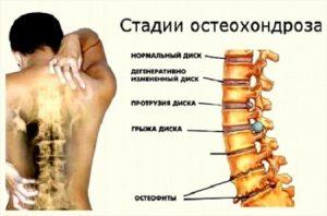 остеохондроз искривление позвоночника