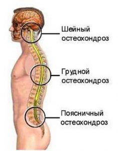 написано! поясничный остеохондроз симптомы ощущение спасибо информацию. Позволю