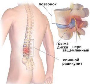 Упражнение для лечения остеохондроза видео скачать
