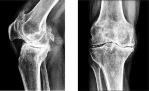 Бальзам дикуля для лечения остеохондроза
